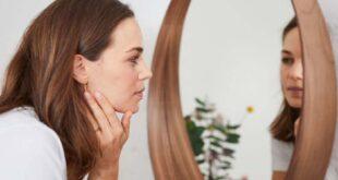 Akne - wenn Pickel die Psyche belasten